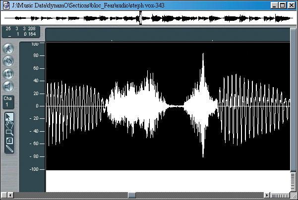 Hyper Editing; Sibilance Removal