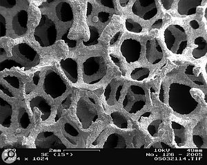The structure of an open–cell metal foam seen through a  scanning electron microscope.